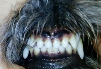 Ortodonzia : ripristino occlusione corretta dopo trattamento ortodontico di malocclusione di 1° classe